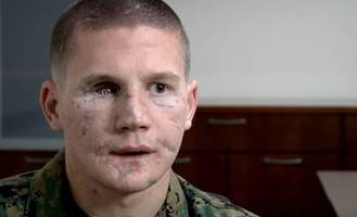 kyle carpenter medal of honor: marine corps vet was injured in afghanistan